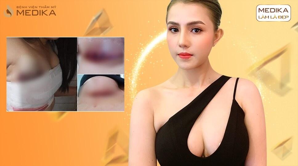 Tránh phẫu thuật ngực hỏng bạn nên tham khảo những điều sau đây - Ở kienthucnangnguc.vn