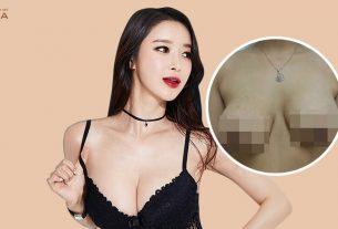 Phẫu thuật chỉnh sửa ngực hỏng - Nơi niềm tin MEDIKA - kienthucnangnguc.vn