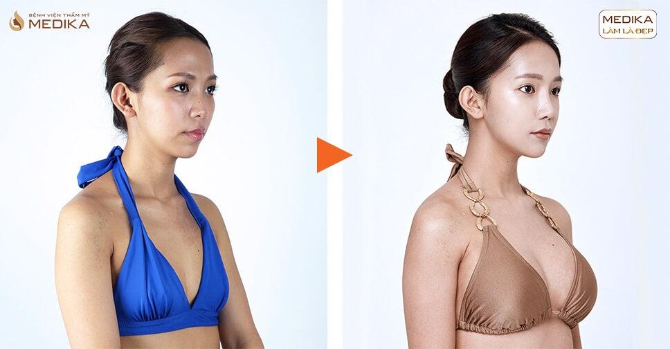 Phẫu thuật nâng vòng 1 và những điều mà các chị em thường bỏ qua - kienthucnangnguc.vn
