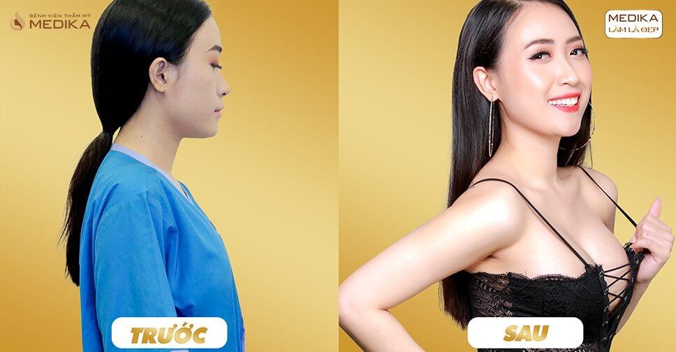 Nâng ngực xệ - Phương pháp giúp nhiều chị em lấy lại phong độ - Kiến thức nâng ngực
