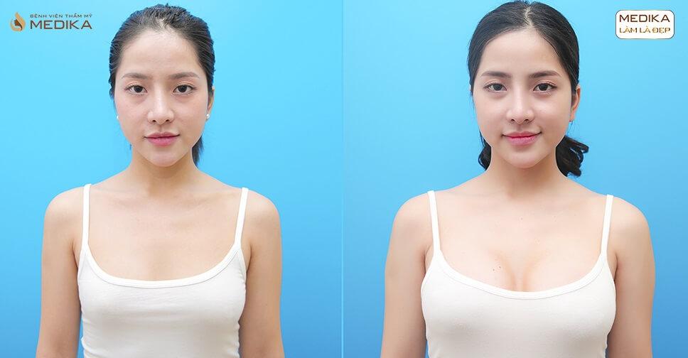 Nâng vòng 1 xệ và những nguyên nhân chúng ta cần biết - Kiến thức nâng ngực