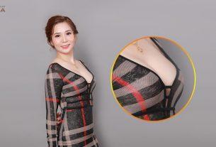 Nâng ngực nội soi đánh bật những phương pháp cũ khỏi đường đua - Kienthucnangnguc.vn