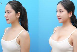 Phẫu thuật nâng ngực đẹp giúp cô nàng người mẫu thành công hơn - Kiến thức nâng ngực