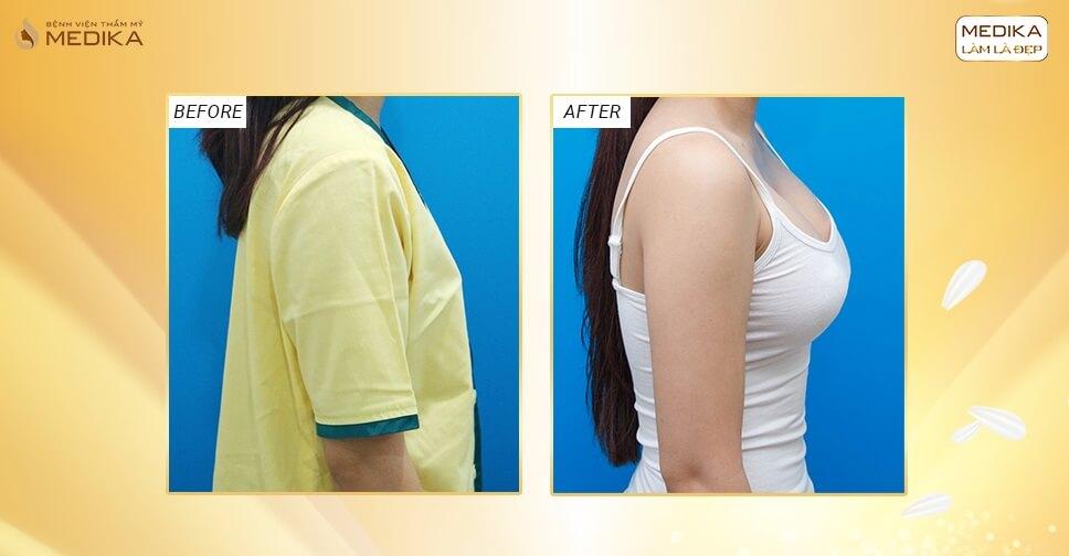 Phẫu thuật nâng vòng 1 đẹp dẹp mọi lo lắng vòng 1 lép - Kiến thức nâng ngực