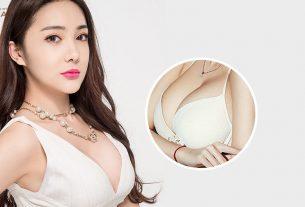 Phẫu thuật nâng vòng 1 kiến tạo bầu ngực đẹp rạng ngời - Kienthucnangnguc.vn