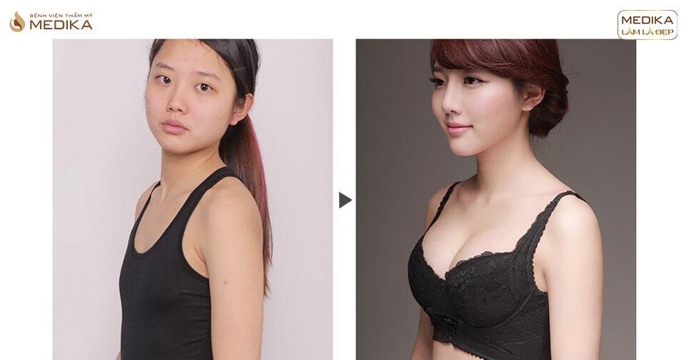 Túi Motiva - Dòng túi ngực cao cấp chị em nên tham khảo - Kiến thức nâng ngực