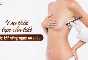 4 sự thật bạn cần biết trước khi nâng ngực an toàn - Kienthucnangnguc.vn