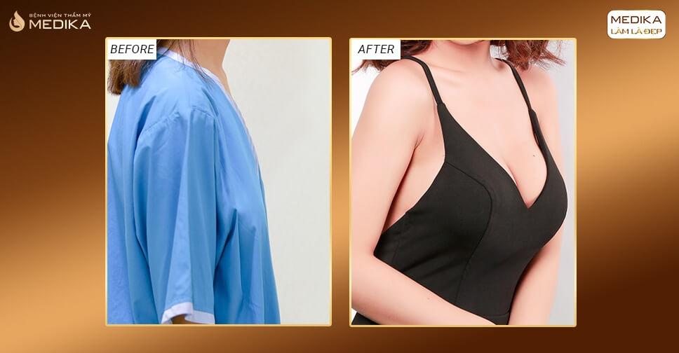 Nâng vòng 1 nội soi mang lại trải nghiệm tốt cho khách hàng - Kiến thức nâng ngực