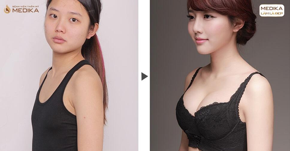 Nâng vòng 1 nội soi phương pháp thực hiện tốt nhất hiện nay - Kiến thức nâng ngực