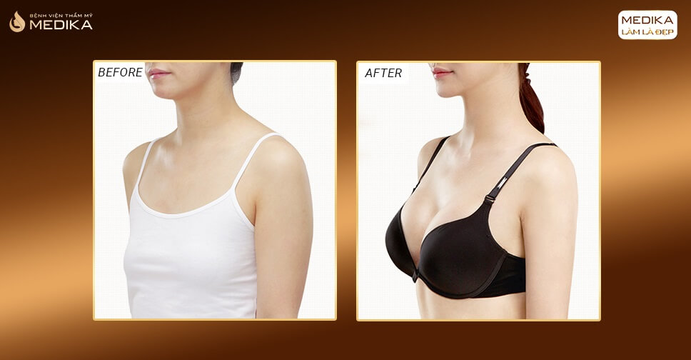 Phẫu thuật nâng ngực đẹp tạm biệt bầu ngực bức tường - Kiến thức nâng ngực