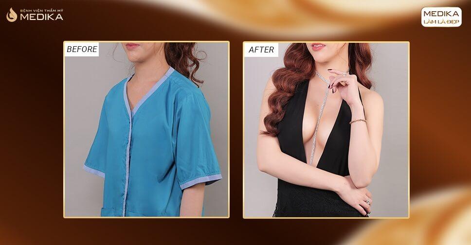 Phẫu thuật nâng vòng 1 an toàn - Lựa chọn hoàn hảo từ MEDIKA - Kienthucnangnguc.vn