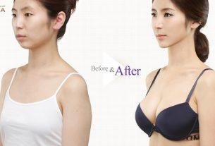 Nâng ngực nội soi sau mùa Covid 19 nhận bao la ưu đãi - Kiến thức nâng ngực