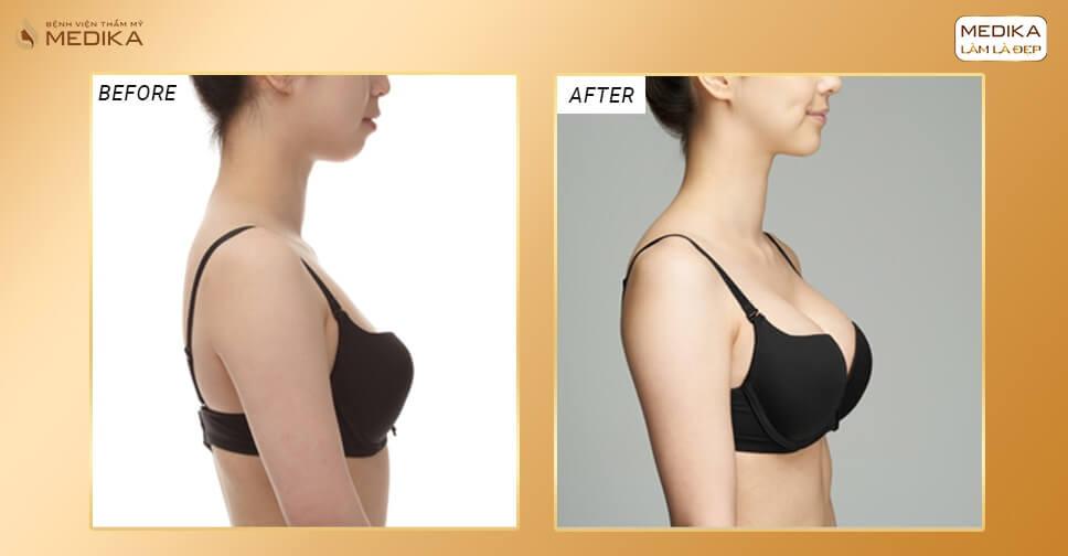 Nâng vòng 1 không đau có mặt tại MEDIKA - Kiến thức nâng ngực