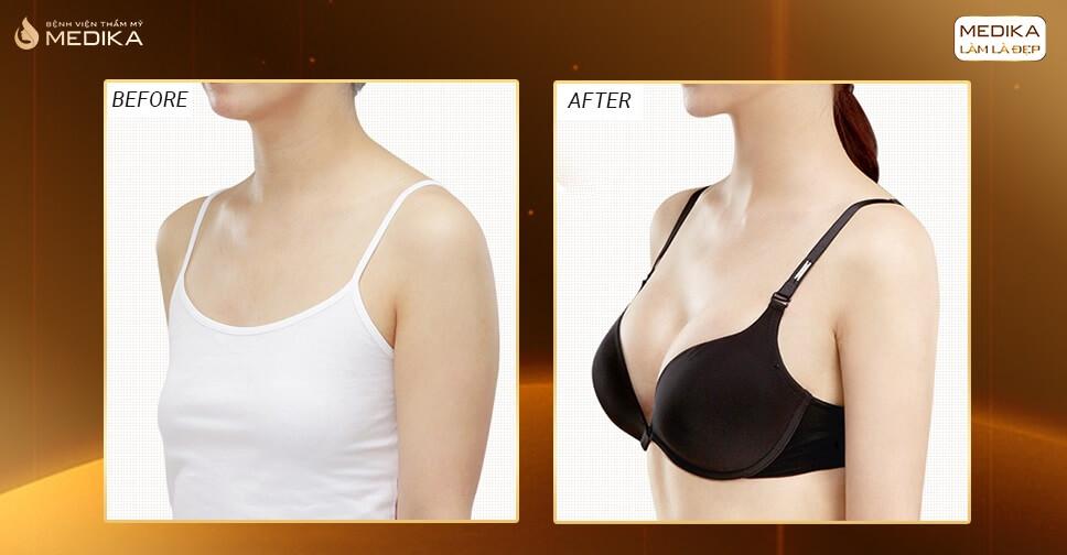 Nâng ngực túi Nano Chip luôn an toàn hiệu quả - Kienthucnangnguc.vn