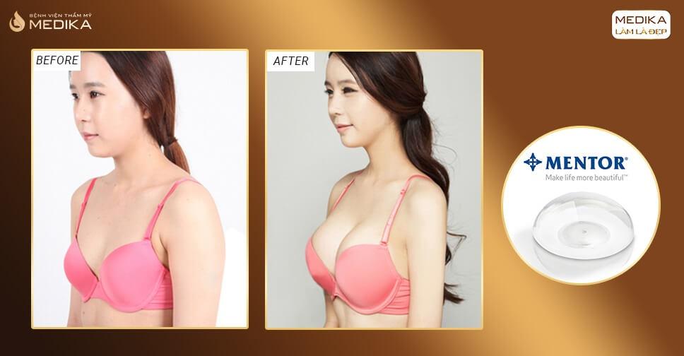 Túi Mentor có hạn chế được tình trạng bao xơ khi nâng ngực bởi Kiến thức nâng ngực?
