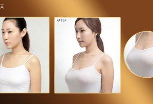 Phẫu thuật nâng ngực đẹp tại Bệnh viện thẩm mỹ MEDIKA từ Kiến thức nâng ngực