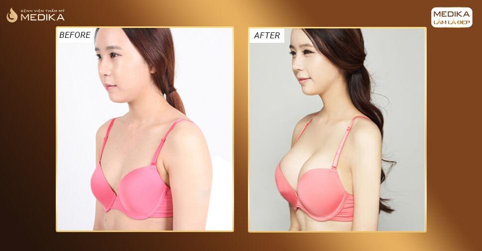 Nâng ngực nội soi vì sao được nhiều chị em chọn lựa từ Kiến thức nâng ngực?
