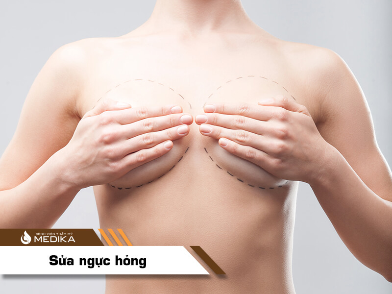 Lỡ phẫu thuật ngực hỏng nên sửa lại ở đâu bởi Kiến thức nâng ngực?
