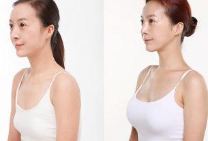 Lỡ phẫu thuật ngực hỏng nên sửa lại ở đâu từ Kiến thức nâng ngực?