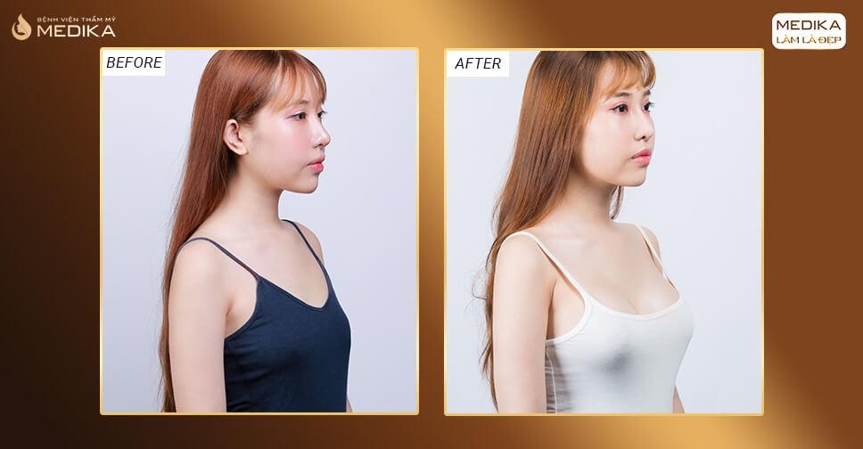 Nâng ngực nội soi được nhiều bạn trẻ chọn lựa từ Kiến thức nâng ngực Kienthucnangnguc.vn