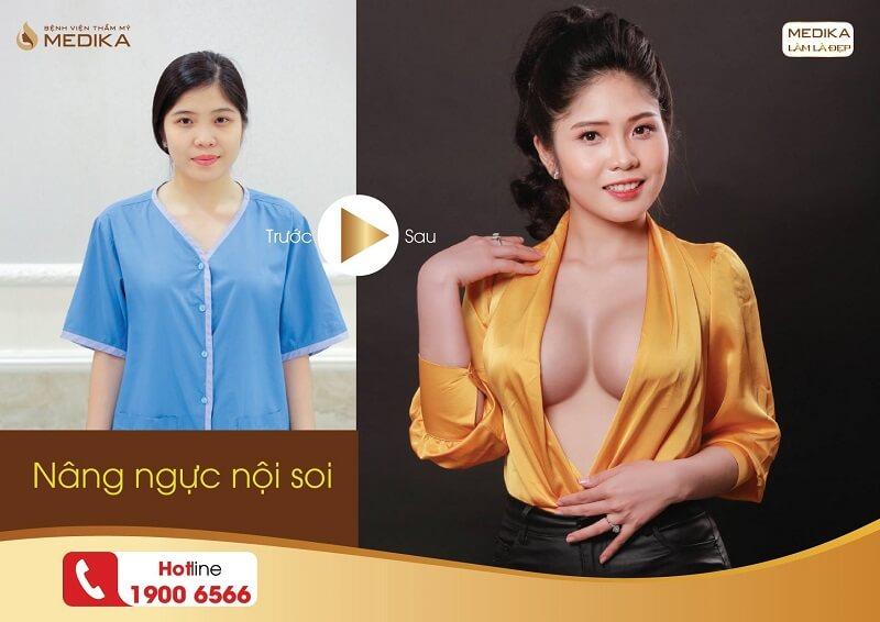 Phẫu thuật nâng ngực nội soi giúp việc nâng ngực trở nên dễ dàng bởi Kiến thức nâng ngực