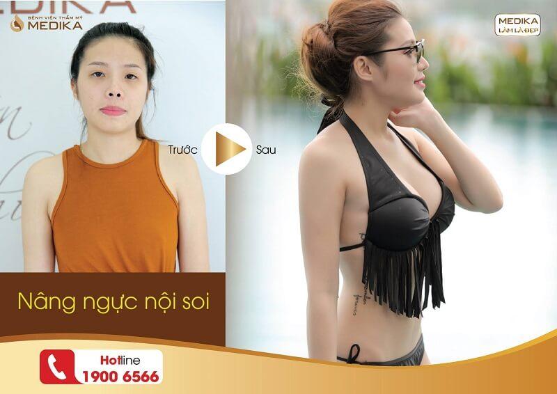 Phẫu thuật nâng ngực nội soi như đi nghỉ dưỡng từ Kiến thức nâng ngực