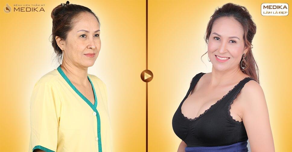 Phẫu thuật nâng ngực nội soi ưu điểm vượt trội bởi Kiến thức nâng ngực