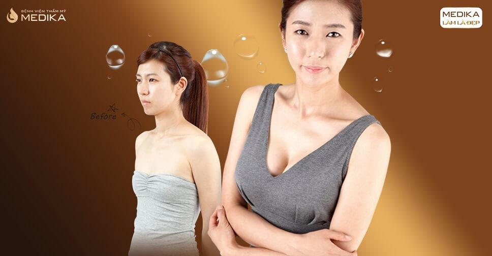 Túi Mentor nên lựa chọn vì các yếu tố sau bởi Kiến thức nâng ngực