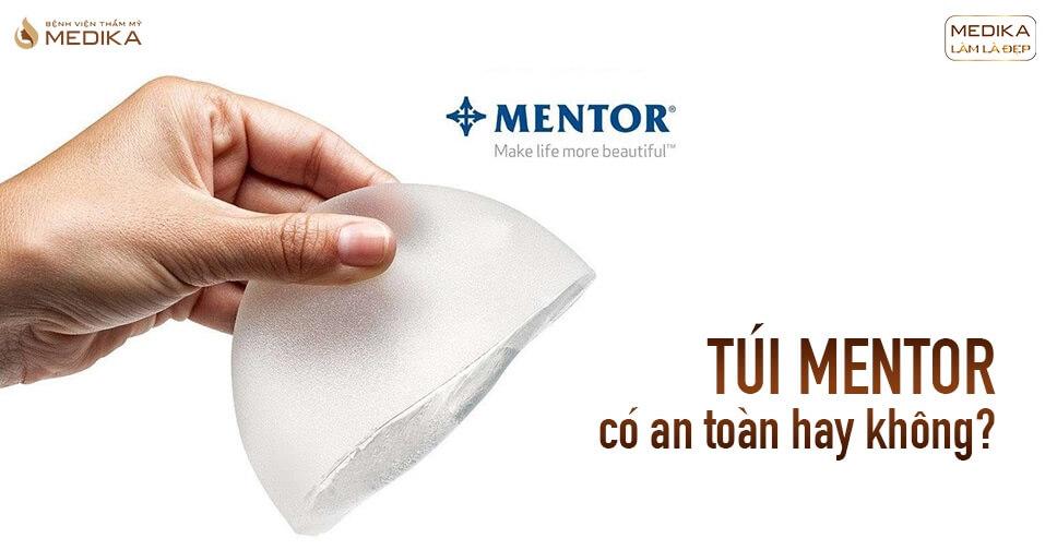 Túi Mentor nên lựa chọn vì các yếu tố sau từ Kiến thức nâng ngực