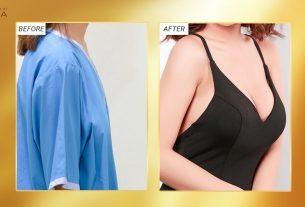 Cuối năm phẫu thuật ngực hỏng nhiều vì khách ham khuyến mãi bởi Kiến thức nâng ngực