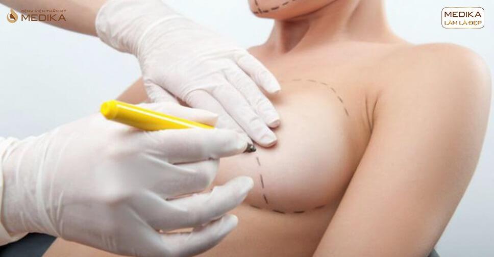 Nhiều chị em vào Sài Gòn phẫu thuật nâng ngực bởi Kiến thức nâng ngực