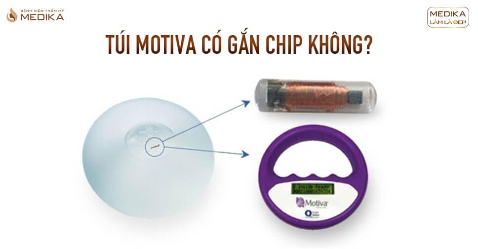 Túi Motiva có được gắn chip không tại Kiến thức nâng ngực?