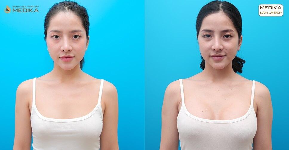 Nâng ngực an toàn dễ dàng ngày nay ở Kiến thức nâng ngực