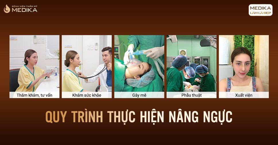 Nâng ngực giúp tôi hạnh phúc hơn tại Kienthucnangnguc.vn