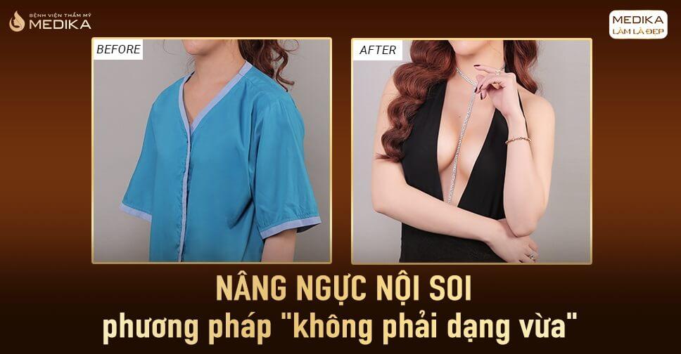 Nâng ngực mang đến vẻ đẹp gợi cảm ở Kienthucnangnguc.vn