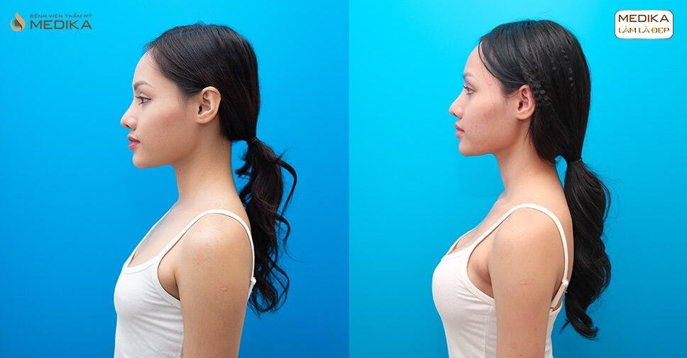 Phương pháp Hoa Kỳ giúp nâng ngực an toàn ở Kiến thức nâng ngực