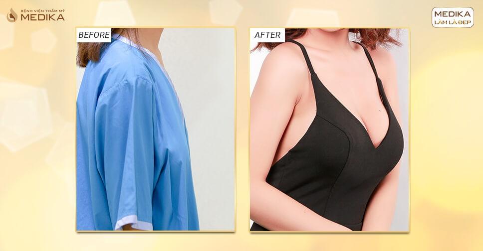 Phương pháp nào nâng ngực an toàn hiện nay ở Kiến thức nâng ngực?