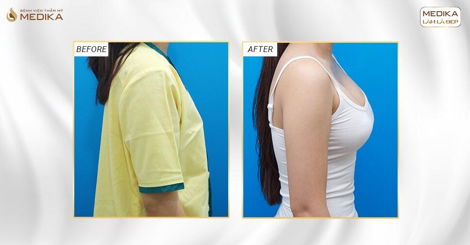 Phương pháp nào nâng ngực an toàn hiện nay tại Kiến thức nâng ngực?