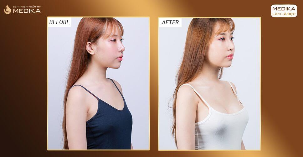 Các giai đoạn hồi phục sau khi thẩm mỹ nâng ngực - Kiến thức nâng ngực